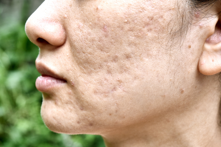 acne laser treatment in Olds