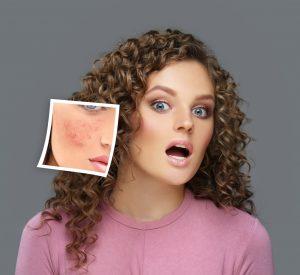 laser-acne-treatment
